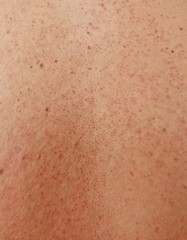 Girl with problematic skin and acne scars in the back
