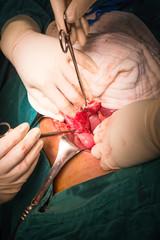 identify appendix
