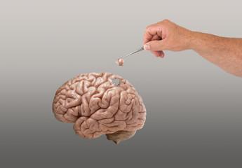 Hirn mit Alzheimer