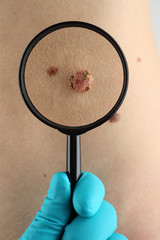 Birthmark. Dermatologist examines mole.