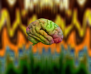 Psychedelic Brain