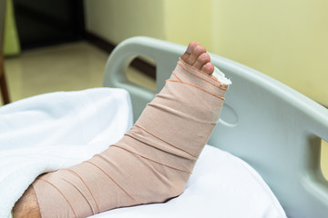 Patient with broken leg in cast and bandage