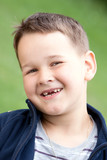 boy outdoors without upper two teeth with smile