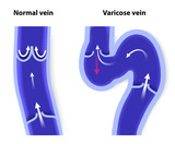 normal vein and Varicose vein poster