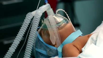 Unidentified Child with an oxygen mask on a critical surgery