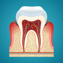 Starting disease gum and caries on human teeth
