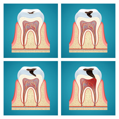 Stages progress dental caries