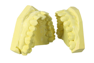 Denture Moulds
