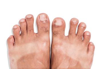 Mark of sunburn on bare foot