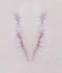 Scar letter V on human skin