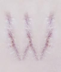 Scar letter W on human skin