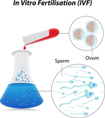 In Vitro Fertilisation