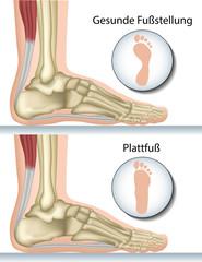Plattfuß, Anatomie Fuß