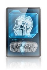 Modern tablet showing MRI images