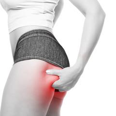 Frau zeigt ihre Cellulite am Oberschenkel