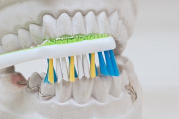 Zahnabdruck