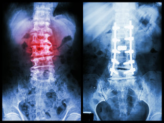 """Spondylosis"" (Left image) , internal fixation. (Right image)"