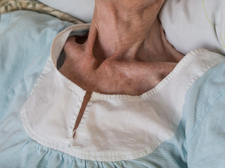 Very skinny old woman lying in a bed