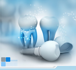 Dental Implant..