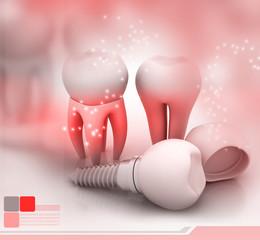 Dental Implant..