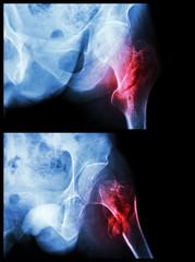 Fracture head of femur(Thigh bone) (intertrochanteric fracture)