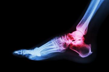 Arthritis at ankle joint (Gout , Rheumatoid arthritis)