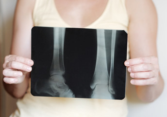 X-ray image of legs