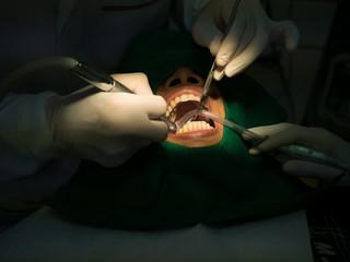 Dentist filling