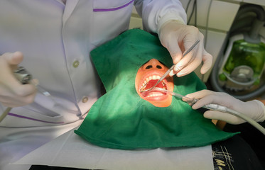 Dentist filling