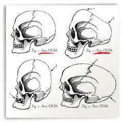 Crâne OGM