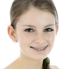 Hübscher Teenager mit Zahnspange
