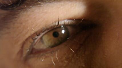 Eye red sick macro 2
