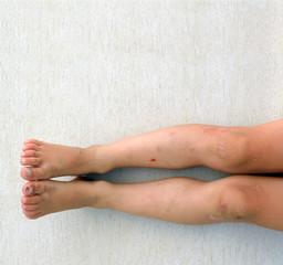 boy injured legs