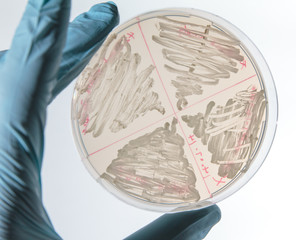 Yeast cells (saccharomyces cerevisiae) streaked on agar plate