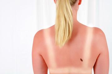 Hautkrebs - Gefahr durch Sonnenbrand