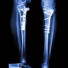 fracture tibia(leg bone). It was operated and internal fixed by