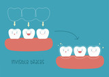 How to of invisible braces by tooth concept Illustrator
