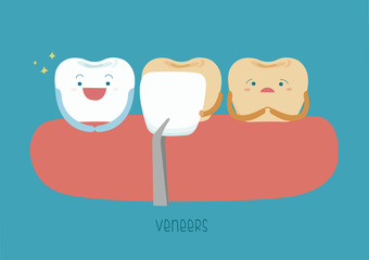 Veneers teeth of dental