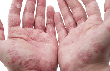 Psoriasis of the Hands on an Adult Male