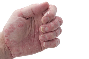 psoriasis of the Nails,Fingers and Palm on an Adult Male
