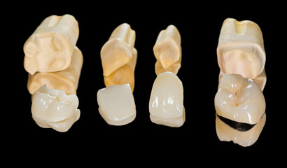 Dental ceramic crowns