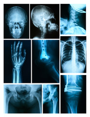 Collage of many X-rays. Very good quality
