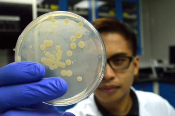 man holding glass dish with colony