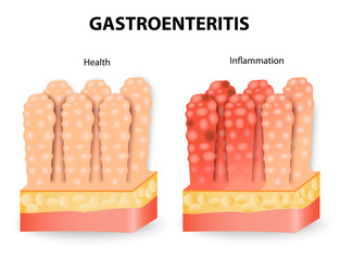 Gastroenteritis or infectious diarrhea