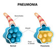 Постер, плакат: Pneumonia Illustration shows normal and infected alveoli