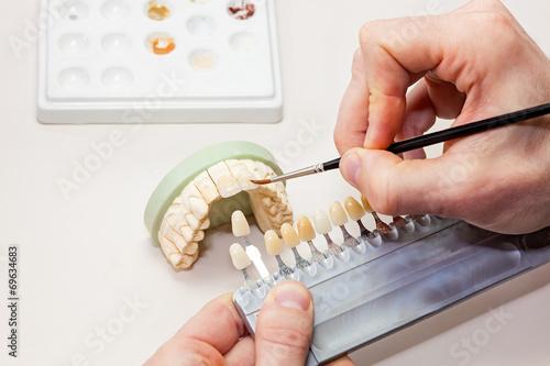 Fototapeta Facial Dental Prosthetic.