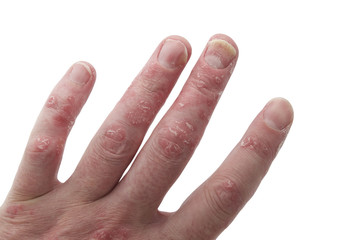 Psoriatic Arthritis and Psoriasis of the Nails and Fingers