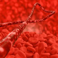 Ebola virus und Blutzellen - 3d Render