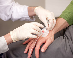 Arzt legt einen Venenkatheter an der Hand