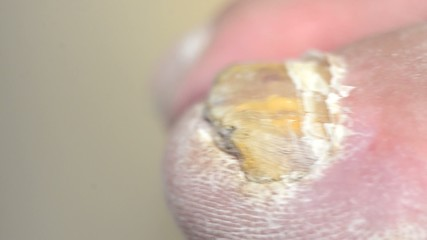 Toenails with common fungal infection